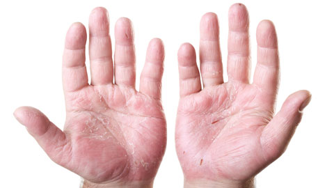 wpid-dermatitis.jpg