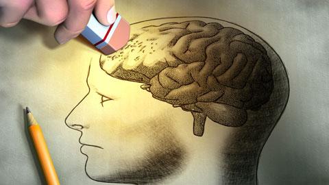 wpid-erasing-someones-brain.jpg