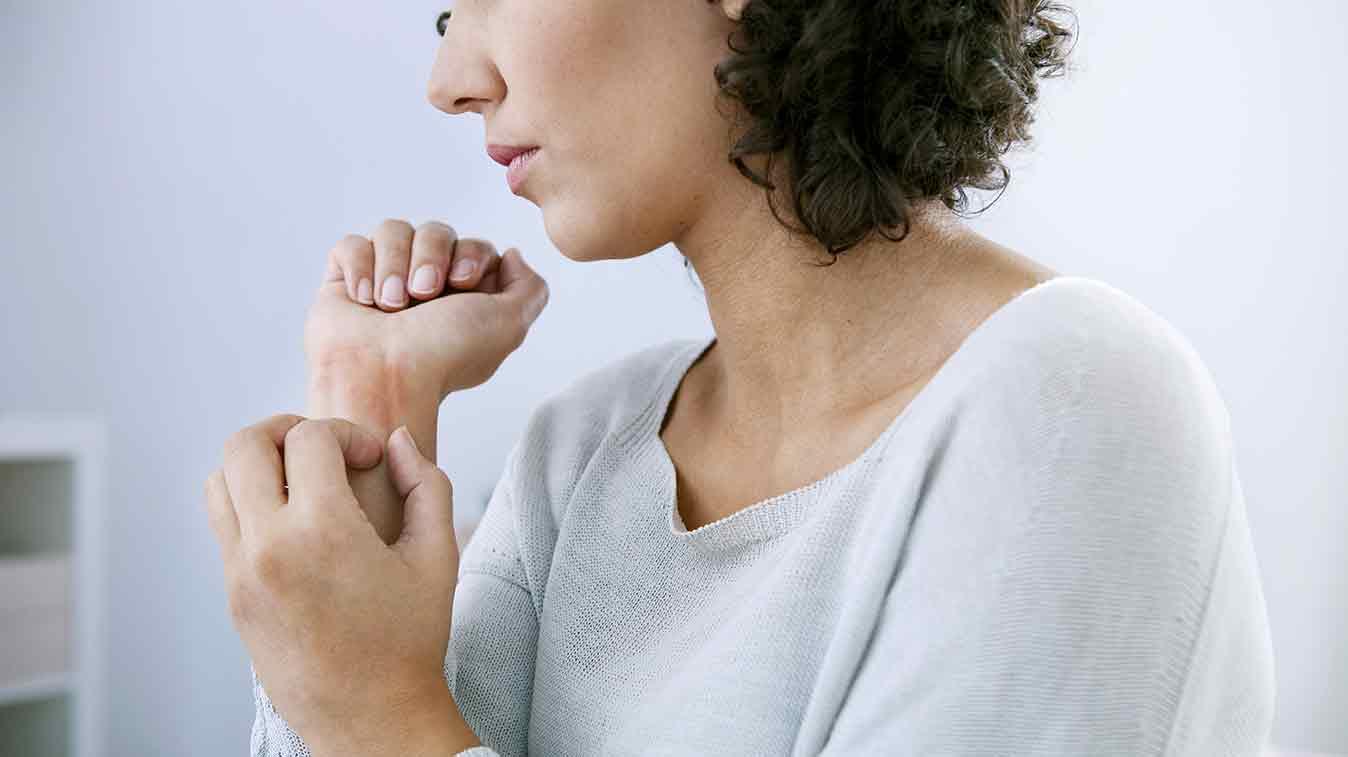 eczema-at-work