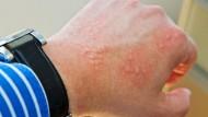 skin problems at work