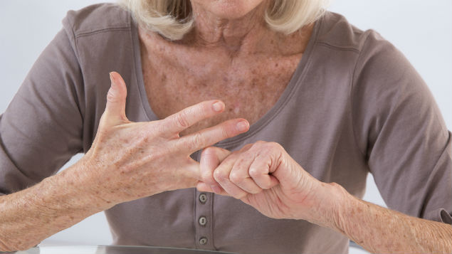 arthritis in the workplace