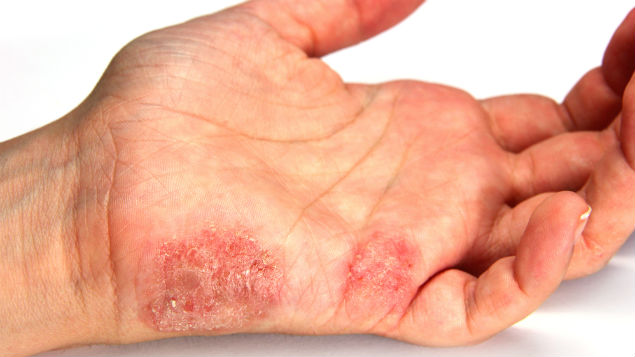 A study of dermatitis shows an association between healthcare  and two chemicals used in the sector.