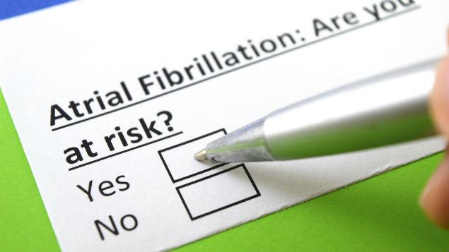 irregular heartbeat atrial fibrillation