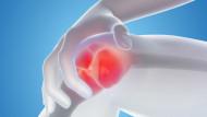osteoarthritis in the workplace
